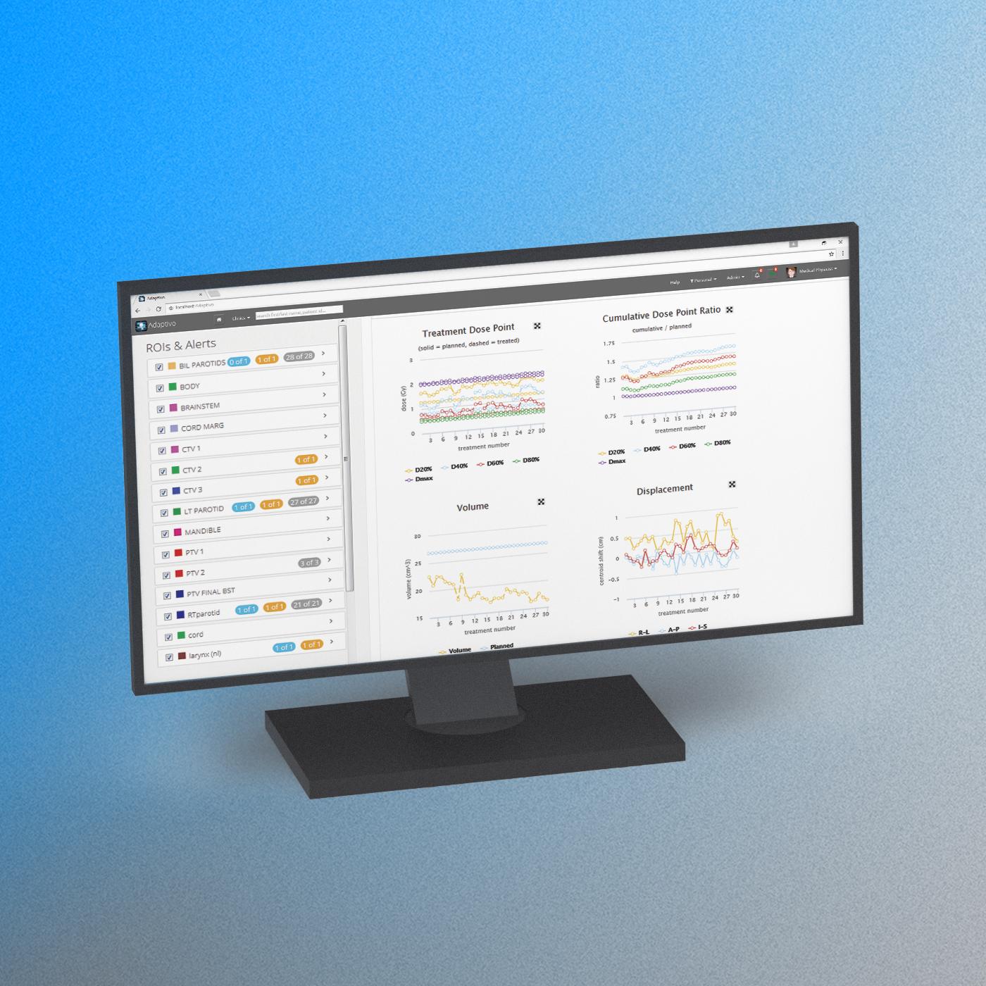 Adaptivo feature leverage data 2 1400