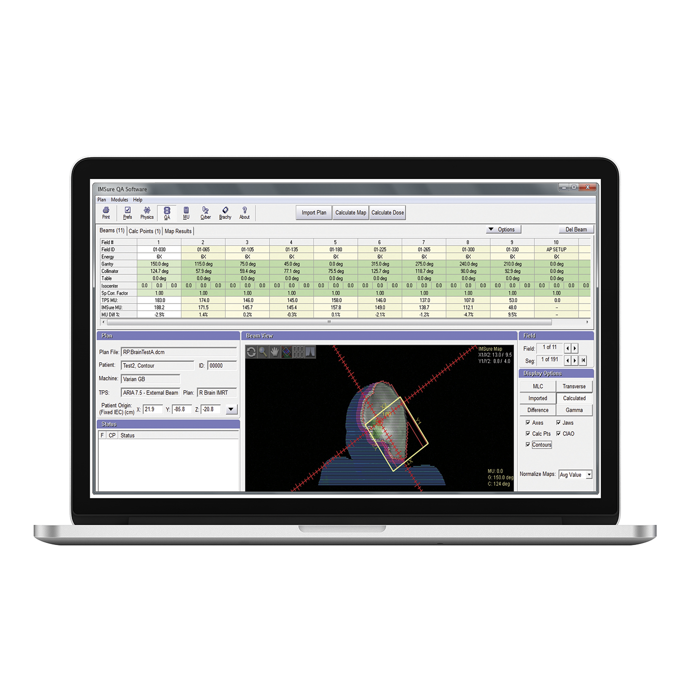 Imsure laptop 1400