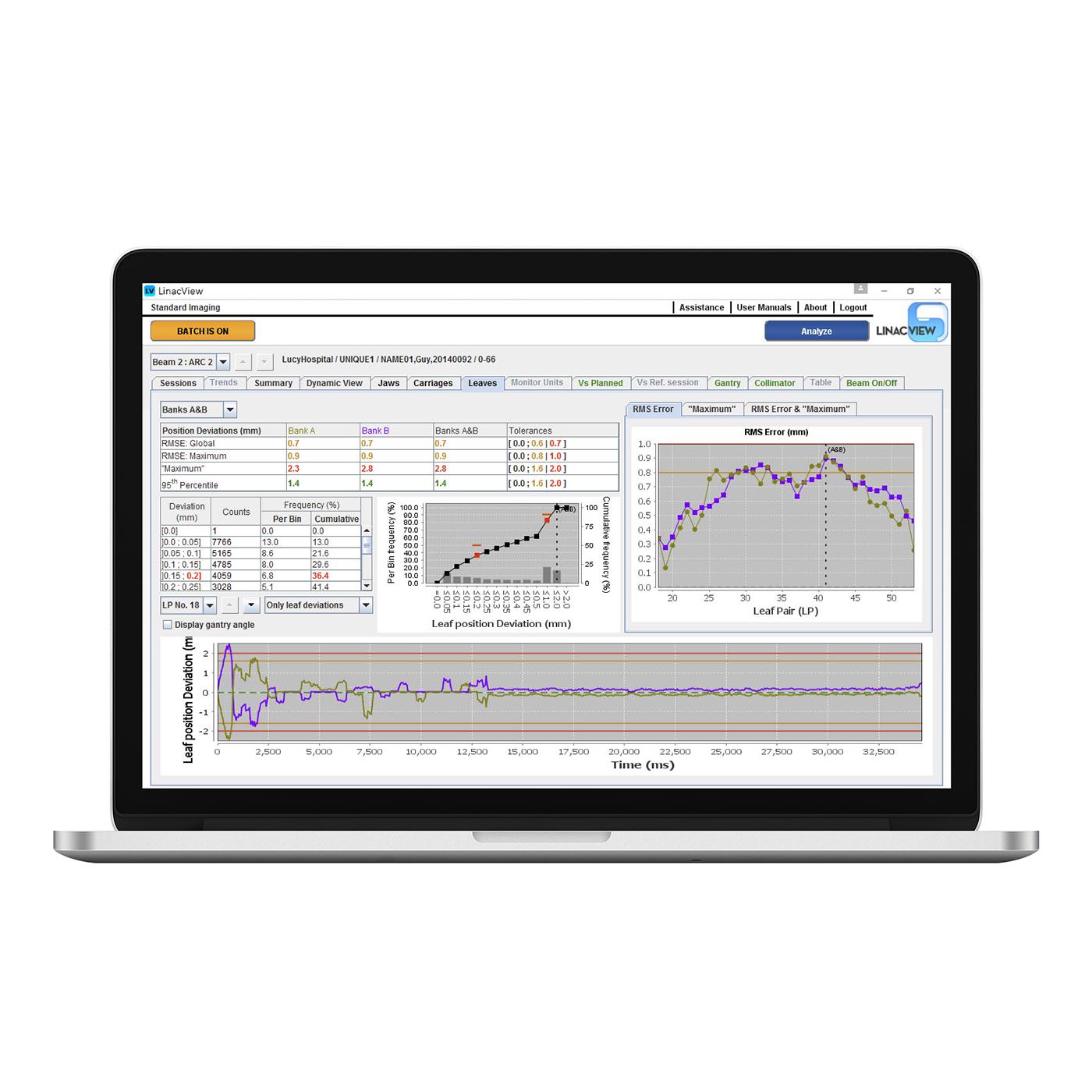Linacview laptop2 1400