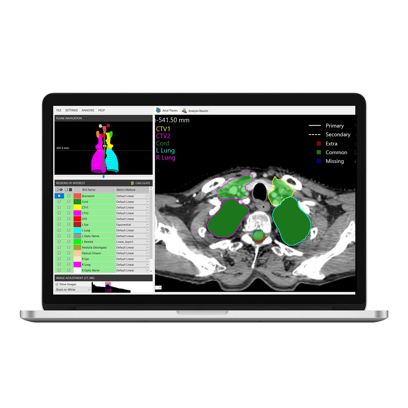 Structsure laptop2 1400