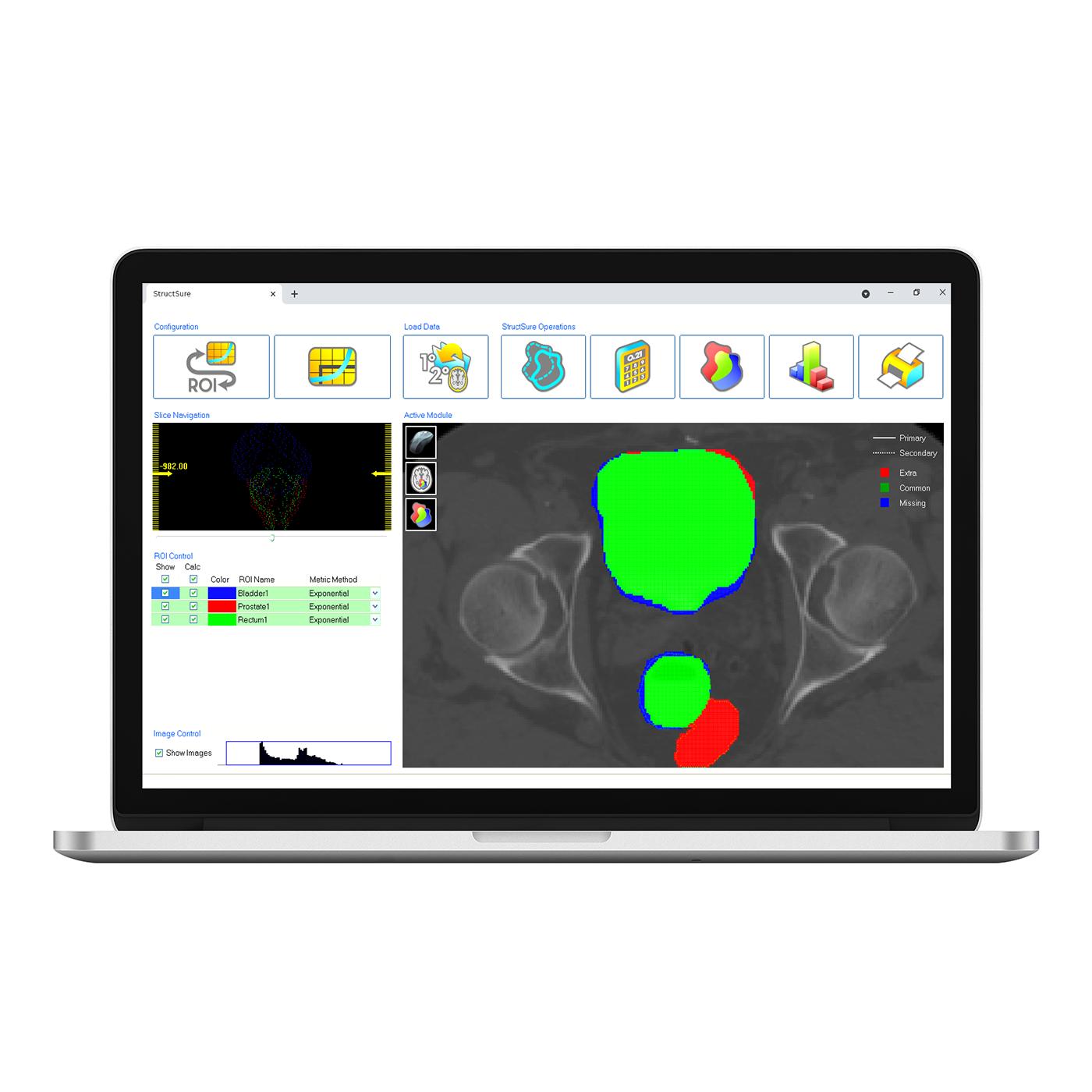 Structsure laptop 1400